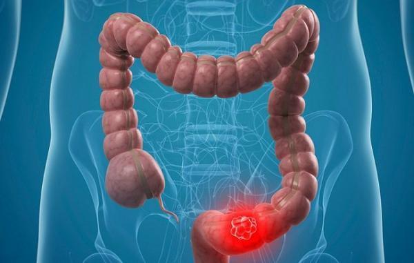 بیماری کولون یا سرطان کلون چیست؟