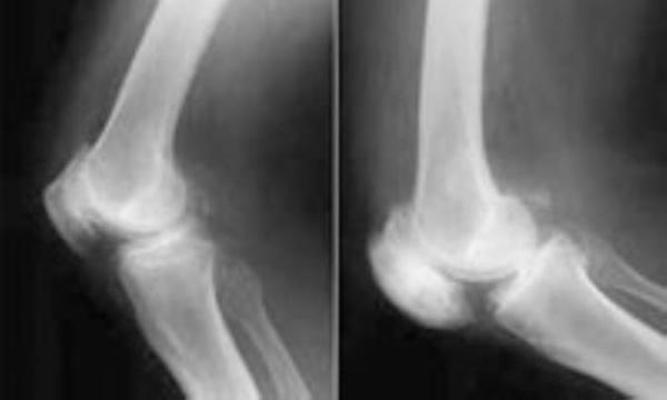 بیماری پاژه استخوان (استئیت دفورمانس )
